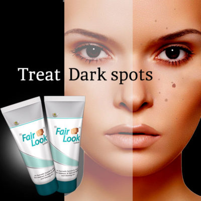 FairLook-Dark Spots